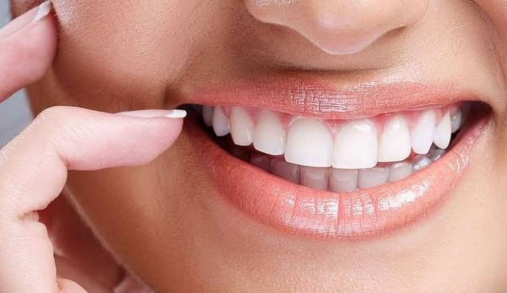 Selecting a Cosmetic Dentist for Veneers & More